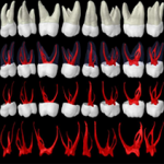Molar-Root-Canal-Anatomy-3_r1_c1